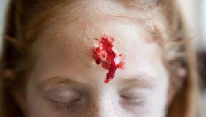 ¿Cómo hacer cicatrices y heridas falsas?